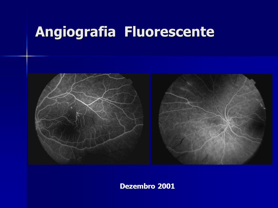 Angiografia Fluorescente