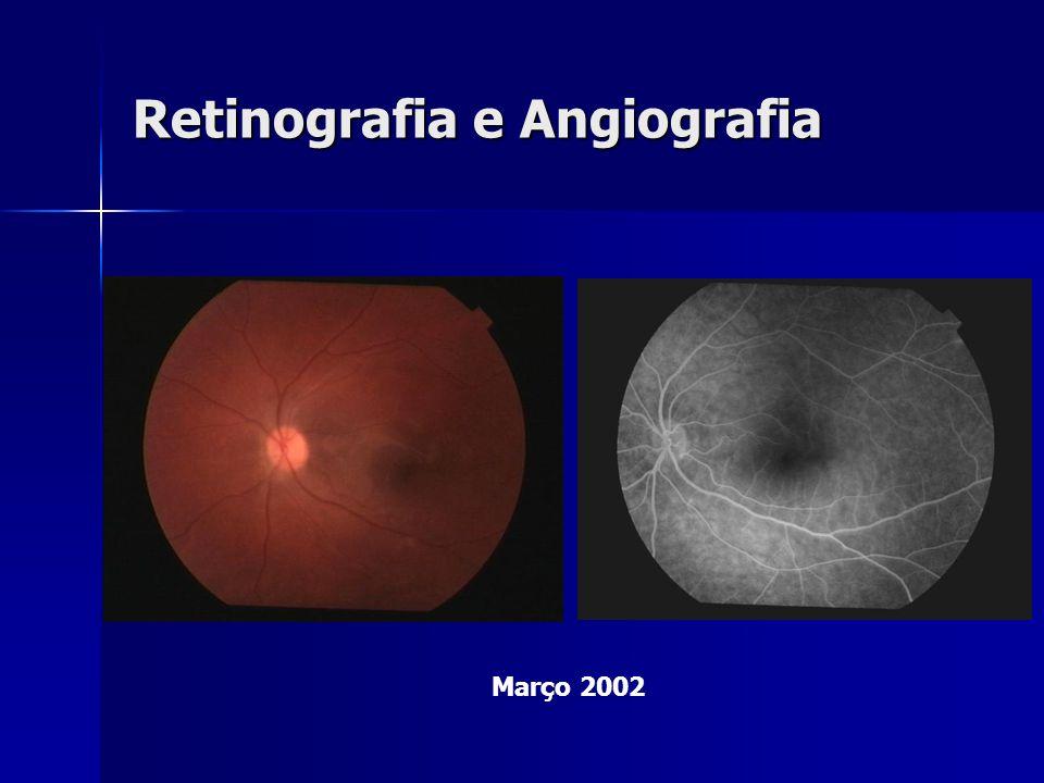 Retinografia e Angiografia