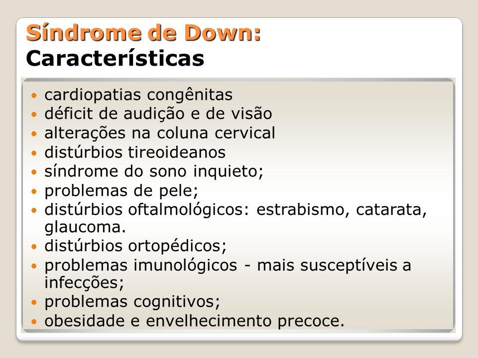 Síndrome de Down: Características