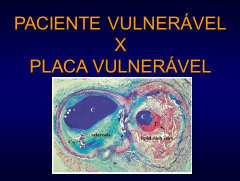 PACIENTE VULNERÁVEL X PLACA VULNERÁVEL