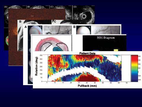 IVUS: informações do volume, presença de ruptura e remodelamento