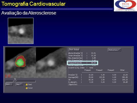 Tomografia Cardiovascular