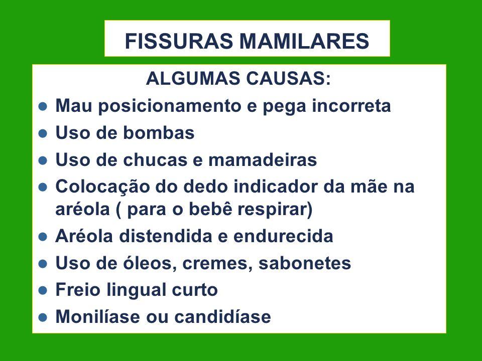 FISSURAS MAMILARES ALGUMAS CAUSAS: Mau posicionamento e pega incorreta