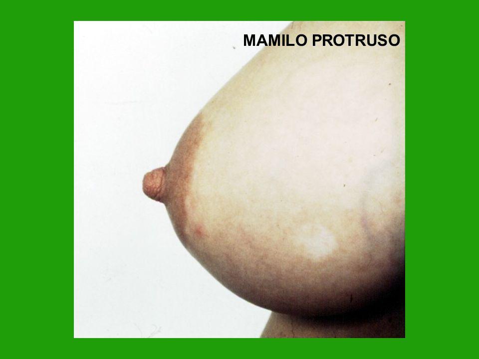 MAMILO PROTRUSO