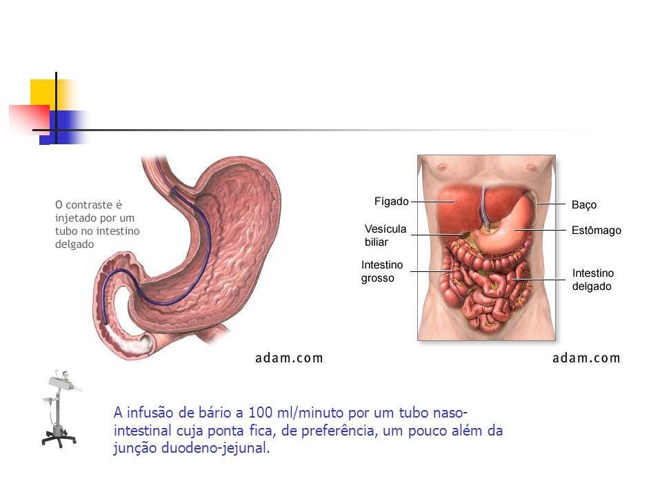 A infusão de bário a 100 ml/minuto por um tubo naso-intestinal cuja ponta fica, de preferência, um pouco além da junção duodeno-jejunal.