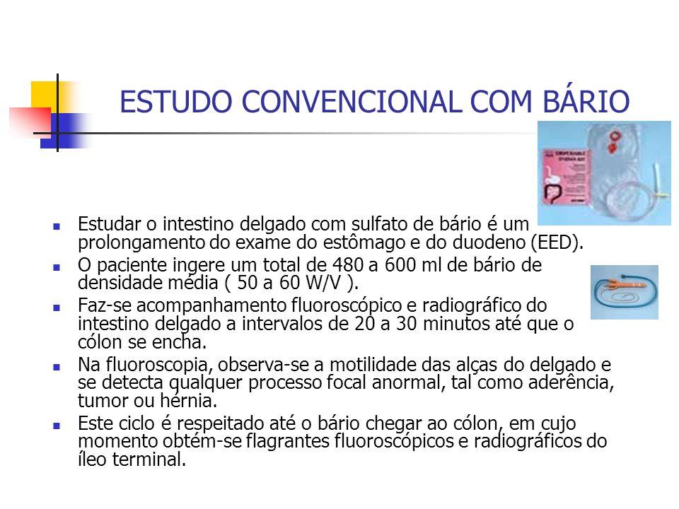 ESTUDO CONVENCIONAL COM BÁRIO