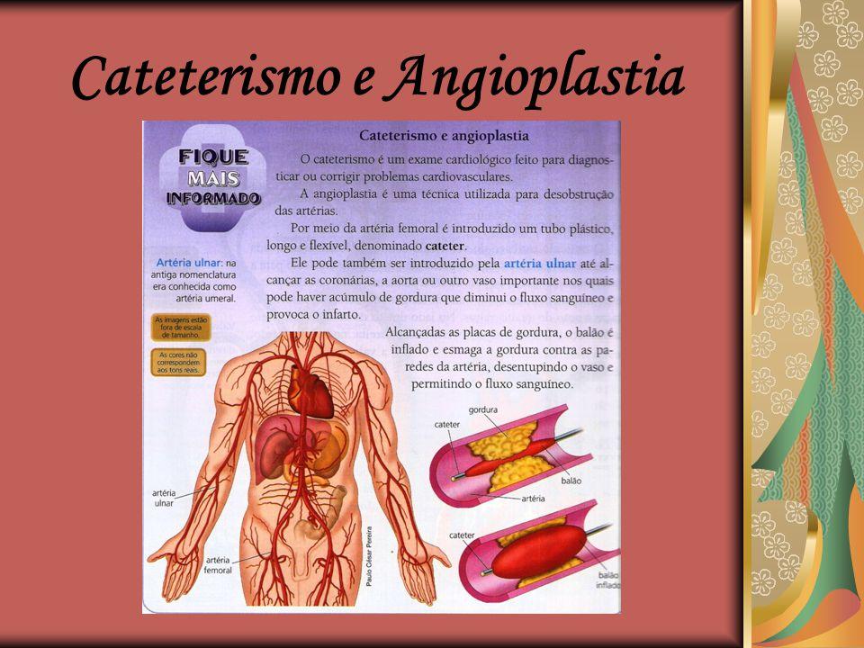 Cateterismo e Angioplastia