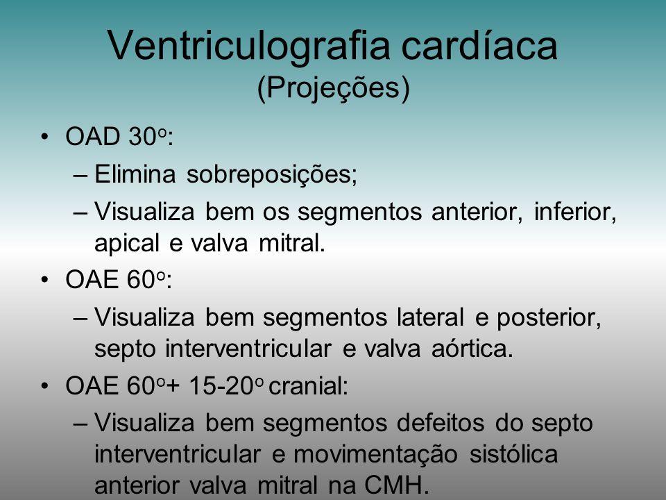Ventriculografia cardíaca (Projeções)