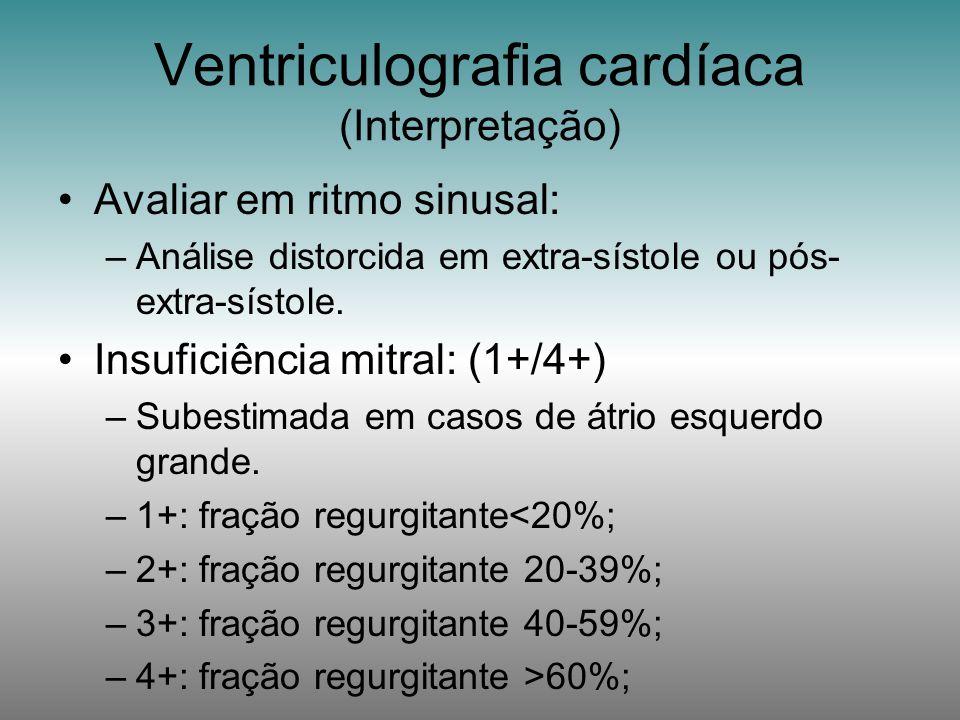 Ventriculografia cardíaca (Interpretação)