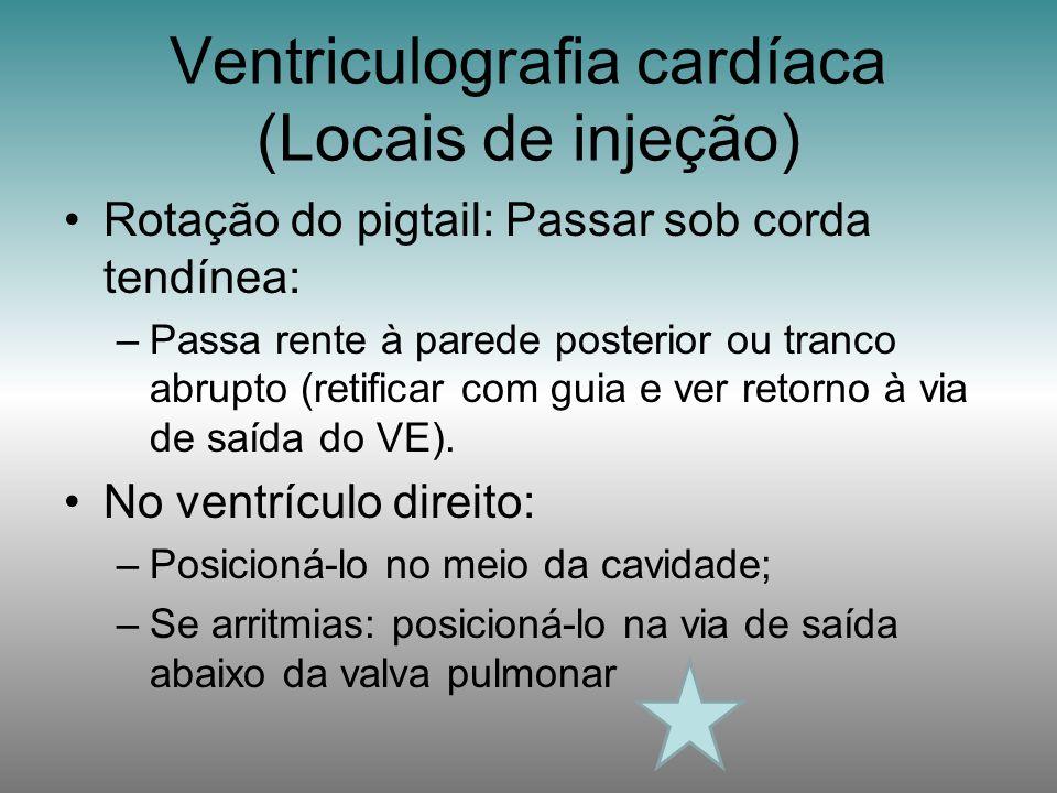 Ventriculografia cardíaca (Locais de injeção)