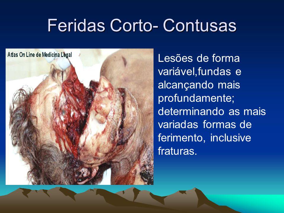 Feridas Corto- Contusas