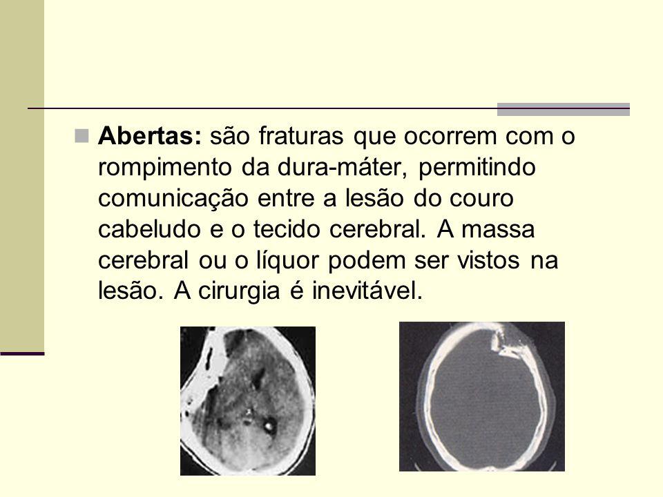 Abertas: são fraturas que ocorrem com o rompimento da dura-máter, permitindo comunicação entre a lesão do couro cabeludo e o tecido cerebral.