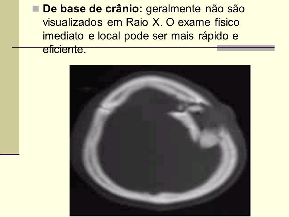 De base de crânio: geralmente não são visualizados em Raio X
