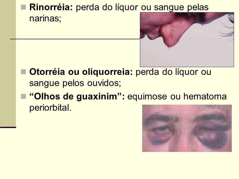 Rinorréia: perda do líquor ou sangue pelas narinas;