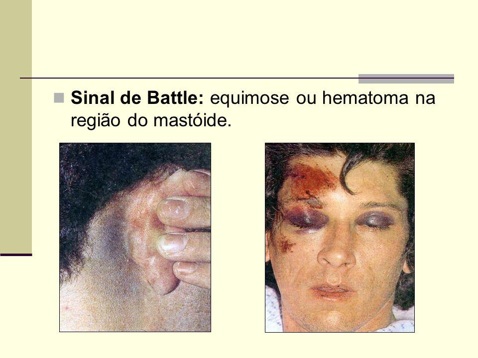 Sinal de Battle: equimose ou hematoma na região do mastóide.
