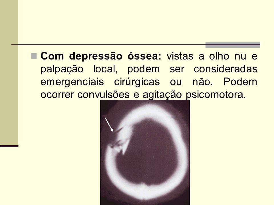 Com depressão óssea: vistas a olho nu e palpação local, podem ser consideradas emergenciais cirúrgicas ou não.