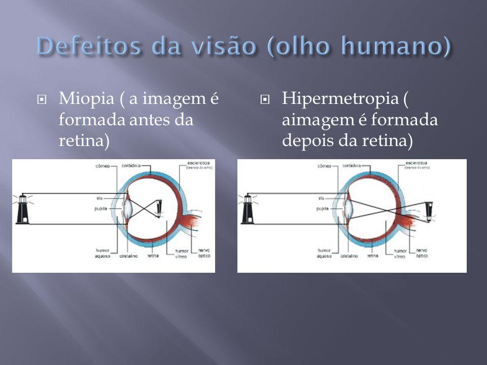 Defeitos da visão (olho humano)