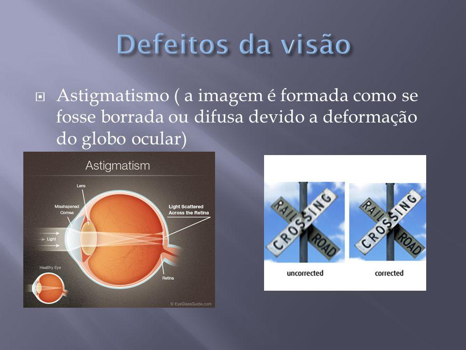 Defeitos da visão Astigmatismo ( a imagem é formada como se fosse borrada ou difusa devido a deformação do globo ocular)