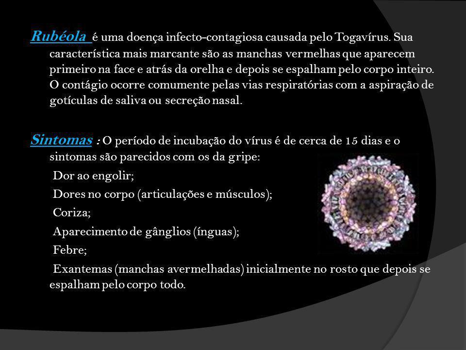 Rubéola é uma doença infecto-contagiosa causada pelo Togavírus