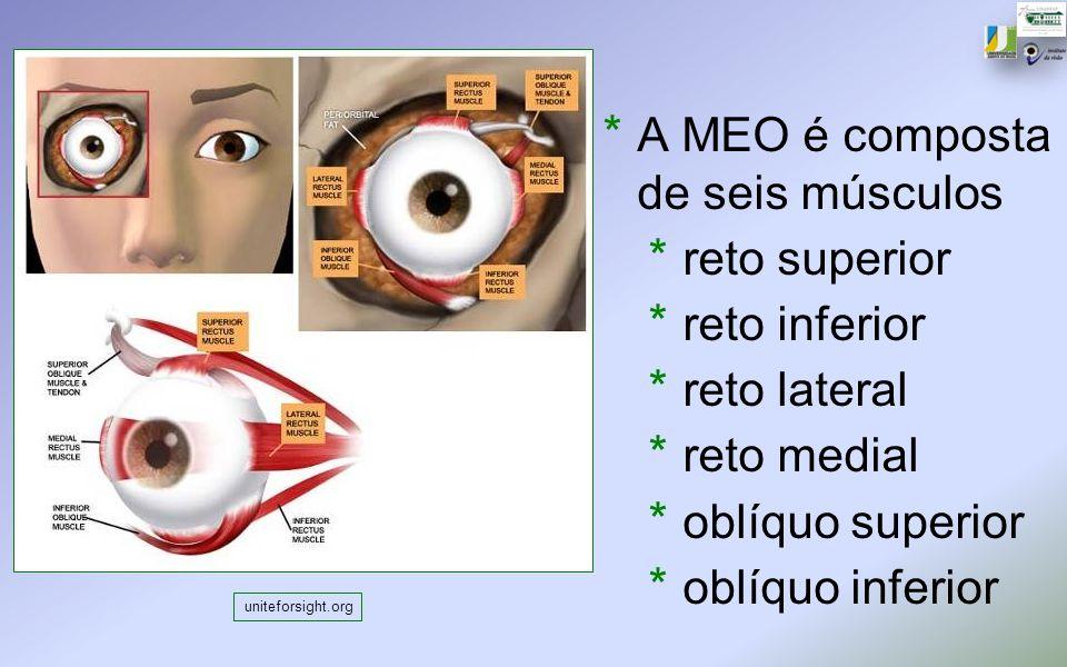 A MEO é composta de seis músculos reto superior reto inferior
