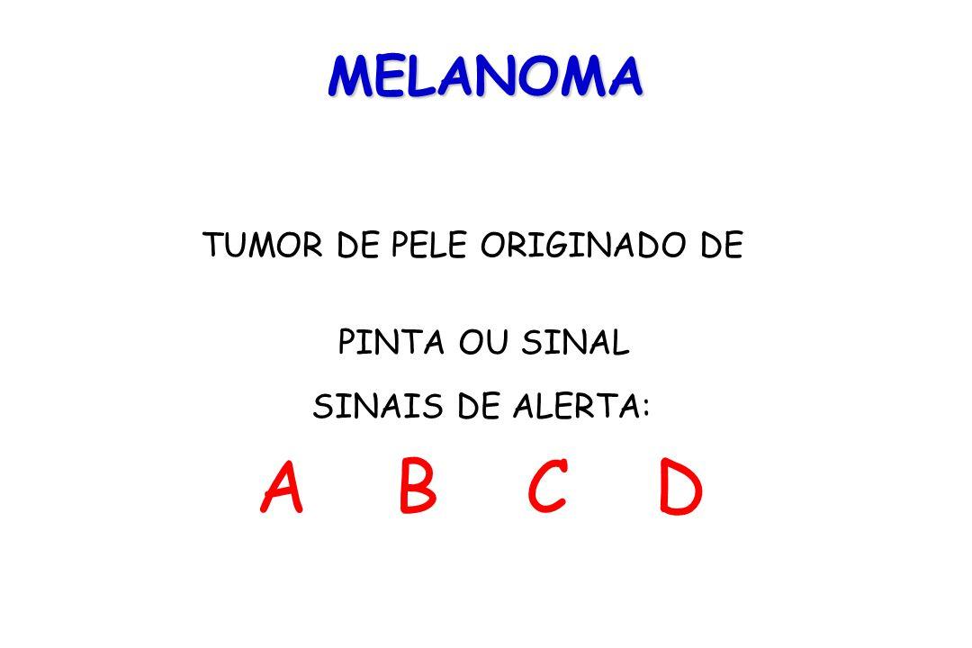 A B C D MELANOMA TUMOR DE PELE ORIGINADO DE PINTA OU SINAL