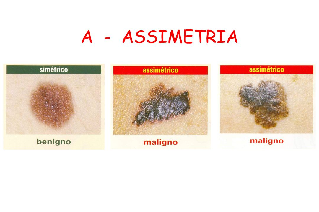 A - ASSIMETRIA
