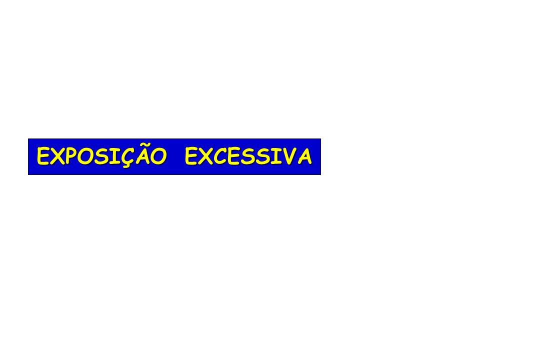 EXPOSIÇÃO EXCESSIVA