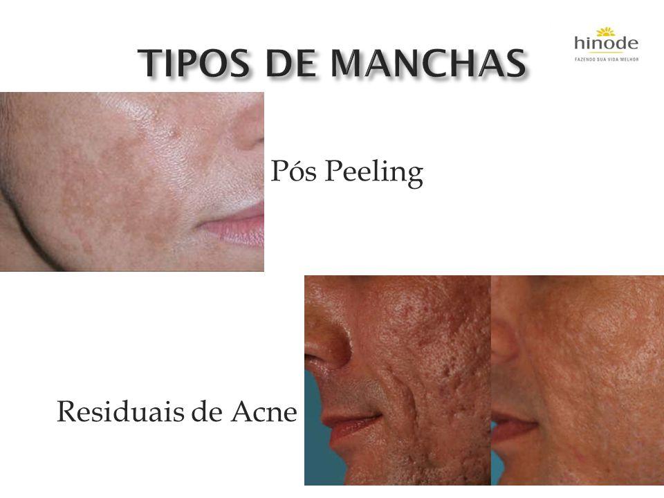 TIPOS DE MANCHAS Pós Peeling Residuais de Acne