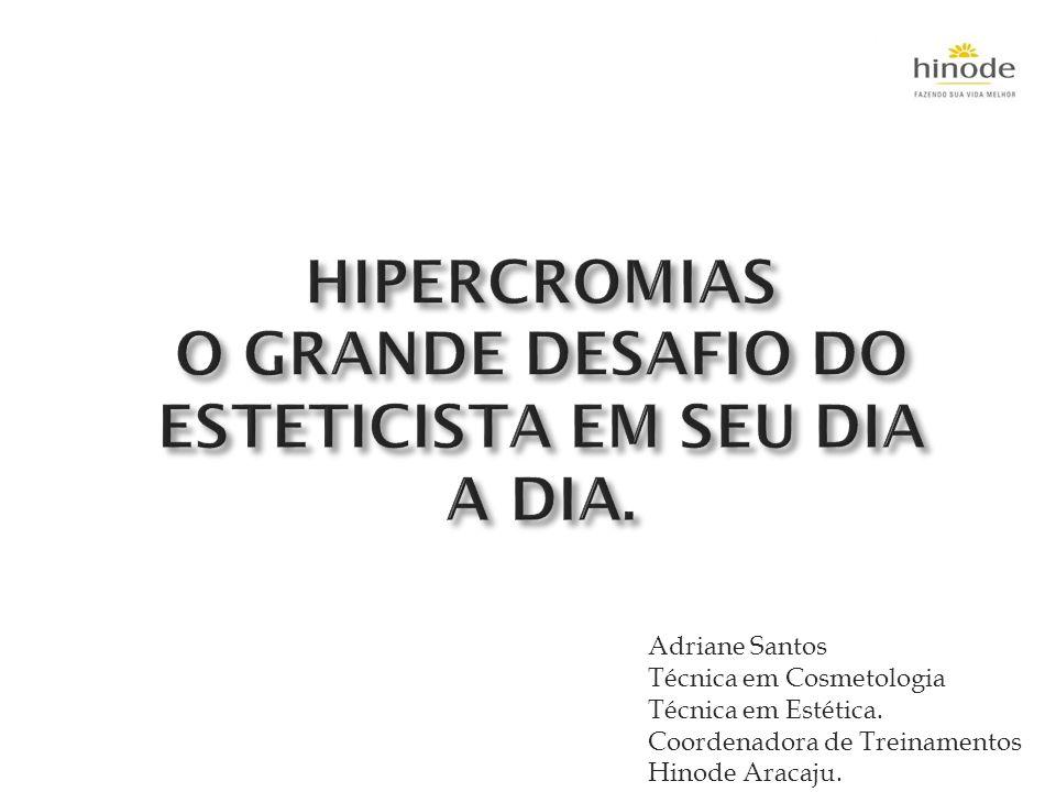HIPERCROMIAS O GRANDE DESAFIO DO ESTETICISTA EM SEU DIA A DIA.