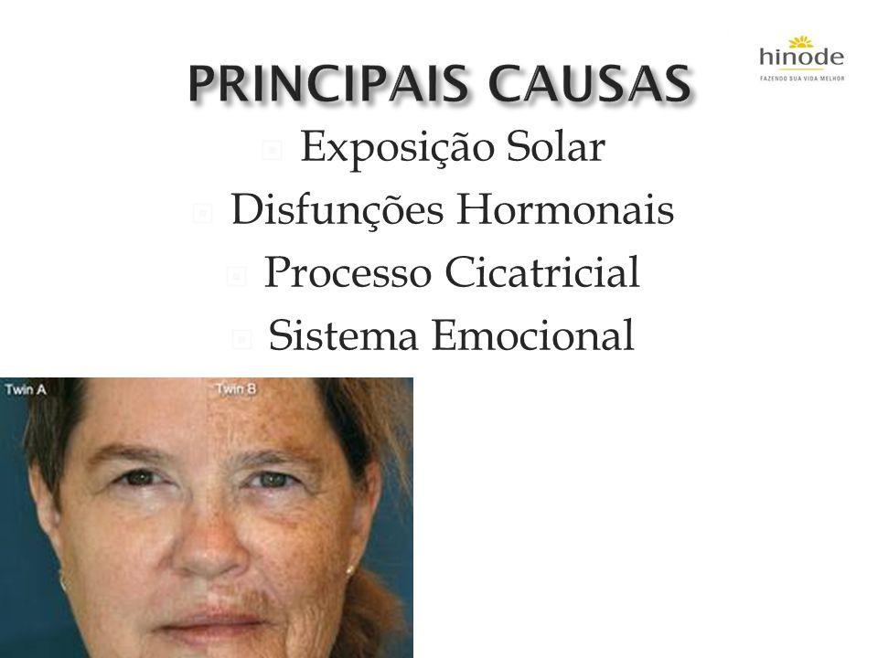 PRINCIPAIS CAUSAS Exposição Solar Disfunções Hormonais