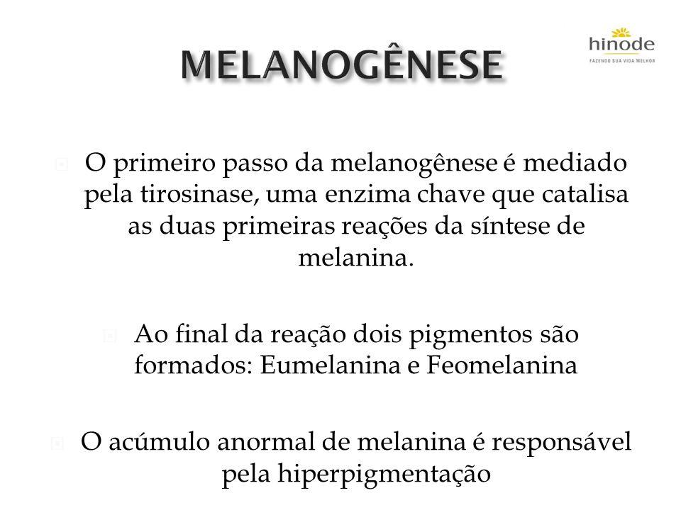 O acúmulo anormal de melanina é responsável pela hiperpigmentação