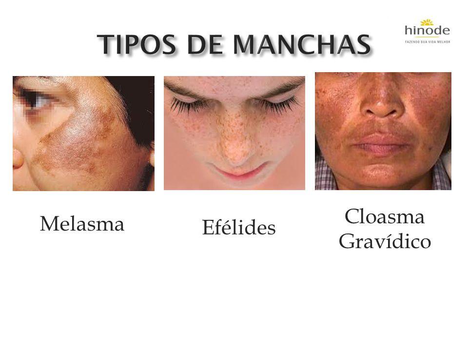 TIPOS DE MANCHAS Cloasma Gravídico Melasma Efélides