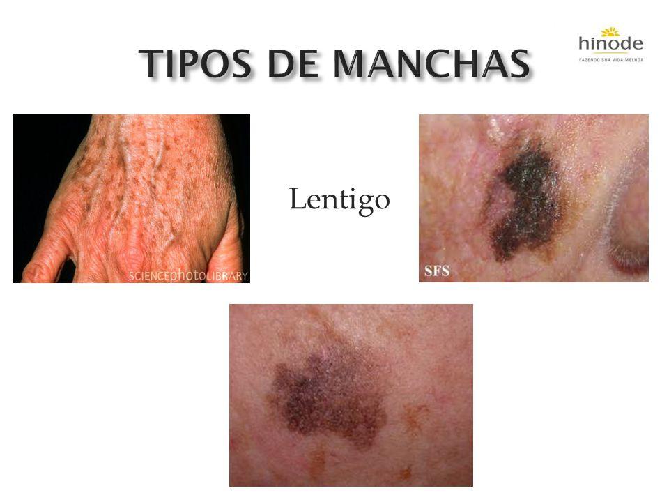 TIPOS DE MANCHAS Lentigo