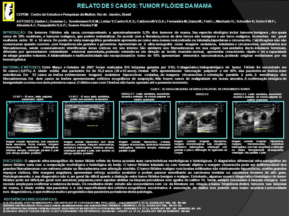 RELATO DE 5 CASOS: TUMOR FILÓIDE DA MAMA