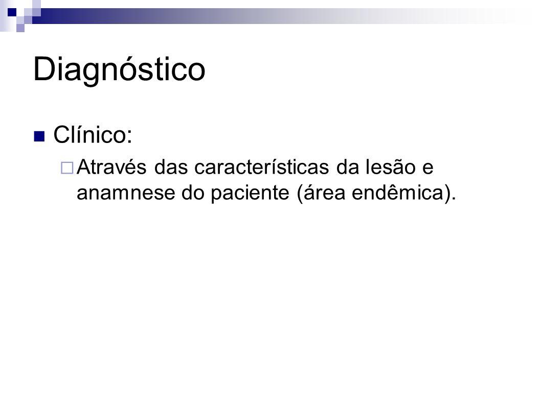 Diagnóstico Clínico: Através das características da lesão e anamnese do paciente (área endêmica).