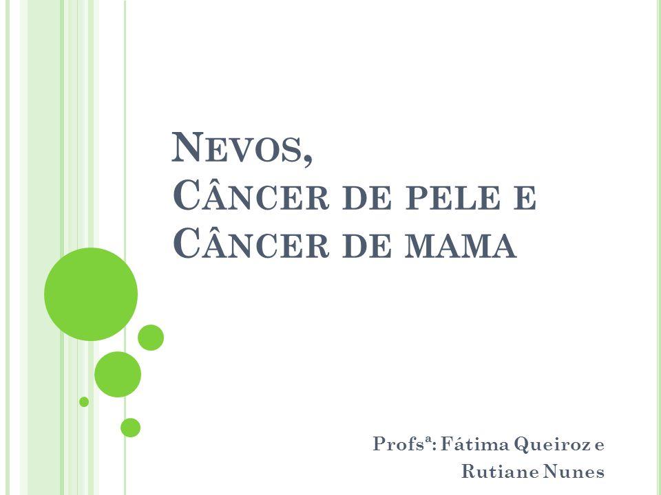Nevos, Câncer de pele e Câncer de mama