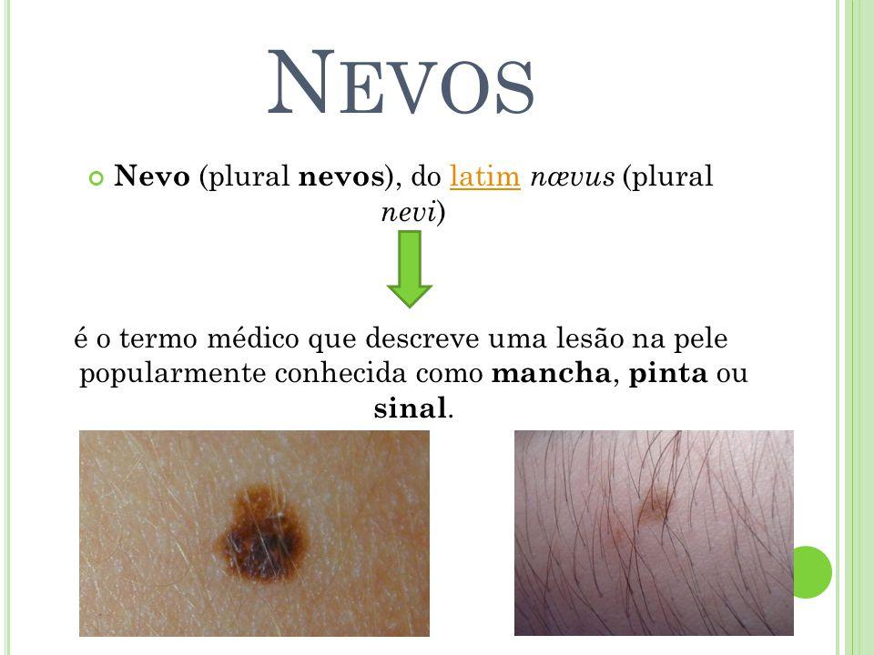 Nevo (plural nevos), do latim nævus (plural nevi)