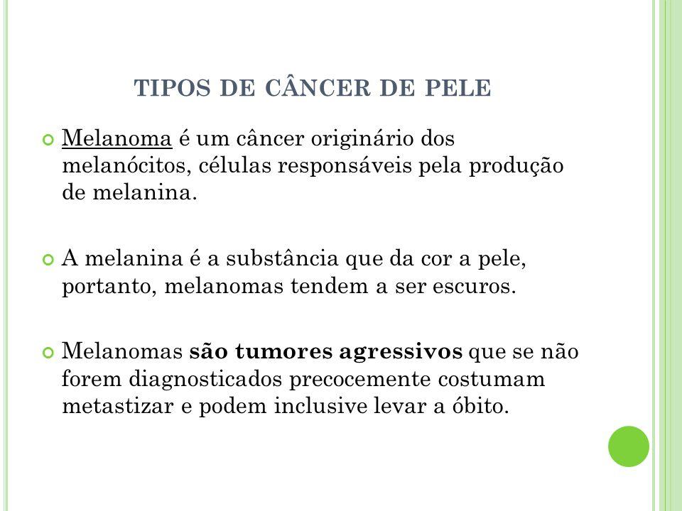 tipos de câncer de pele Melanoma é um câncer originário dos melanócitos, células responsáveis pela produção de melanina.