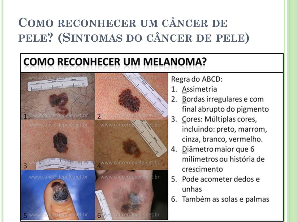 Como reconhecer um câncer de pele (Sintomas do câncer de pele)