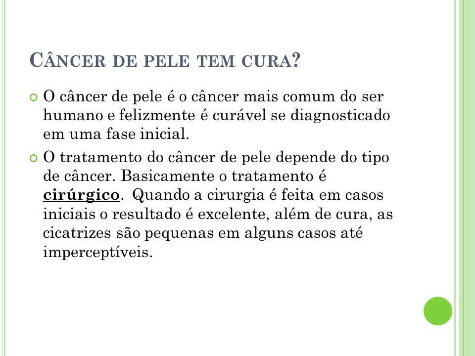 Câncer de pele tem cura O câncer de pele é o câncer mais comum do ser humano e felizmente é curável se diagnosticado em uma fase inicial.