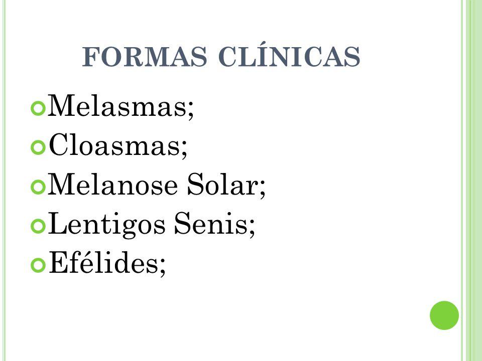 Melasmas; Cloasmas; Melanose Solar; Lentigos Senis; Efélides;