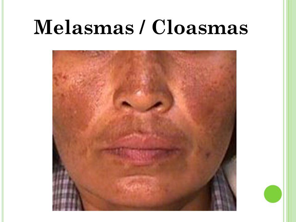 Melasmas / Cloasmas