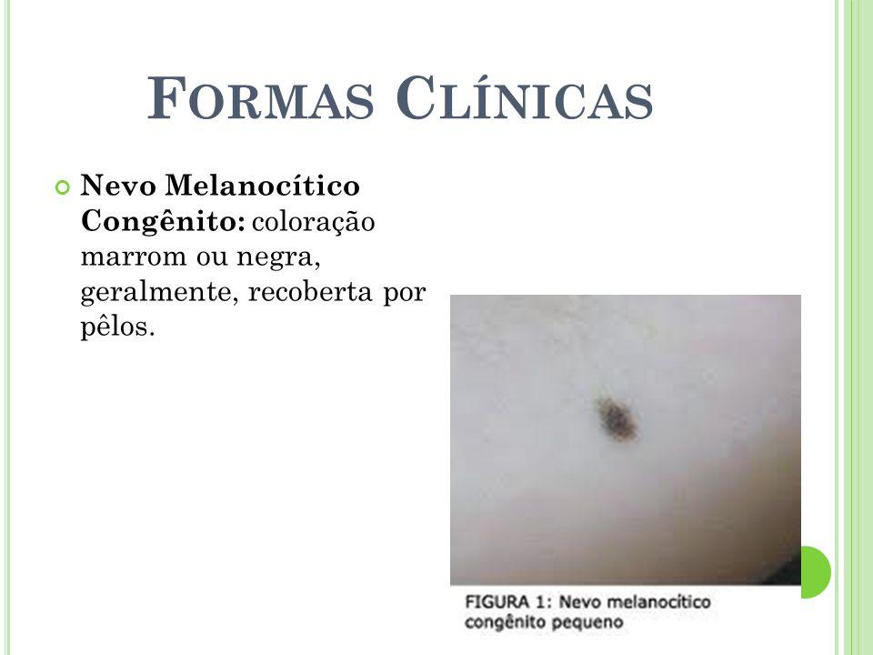 Formas Clínicas Nevo Melanocítico Congênito: coloração marrom ou negra, geralmente, recoberta por pêlos.