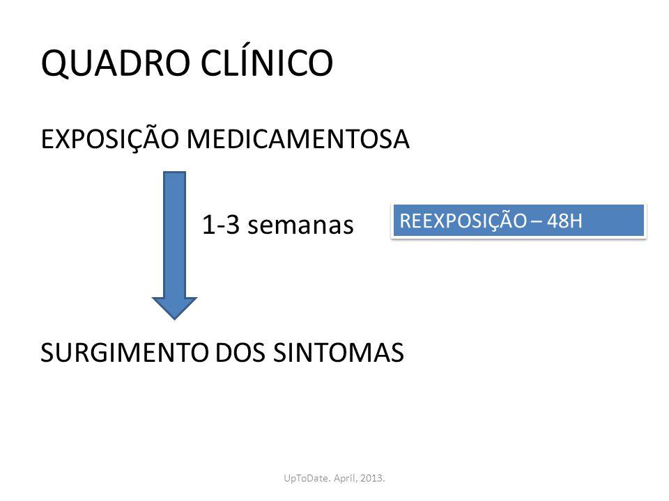 QUADRO CLÍNICO EXPOSIÇÃO MEDICAMENTOSA 1-3 semanas SURGIMENTO DOS SINTOMAS REEXPOSIÇÃO – 48H.