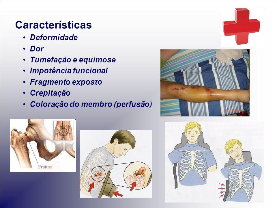 Características Deformidade Dor Tumefação e equimose