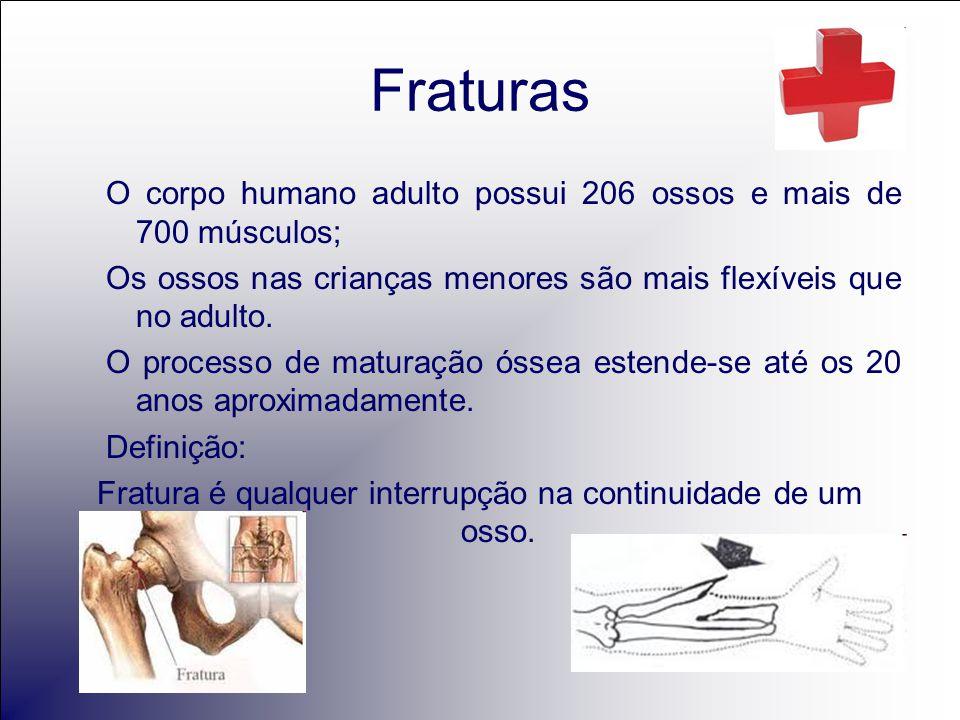 Fratura é qualquer interrupção na continuidade de um osso.
