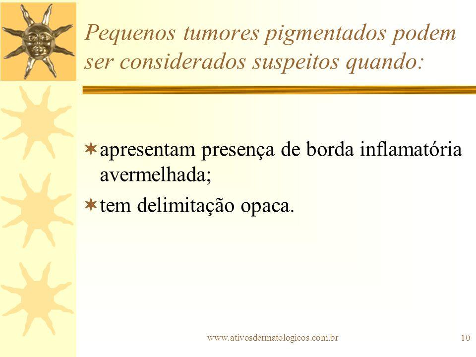 Pequenos tumores pigmentados podem ser considerados suspeitos quando: