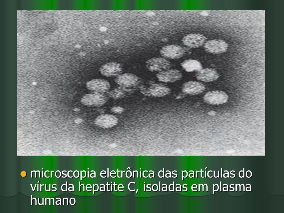 microscopia eletrônica das partículas do vírus da hepatite C, isoladas em plasma humano