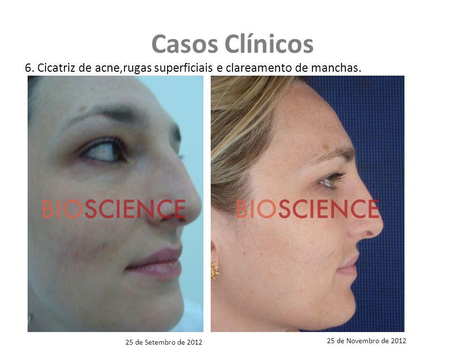 Casos Clínicos 6. Cicatriz de acne,rugas superficiais e clareamento de manchas. 25 de Novembro de 2012.