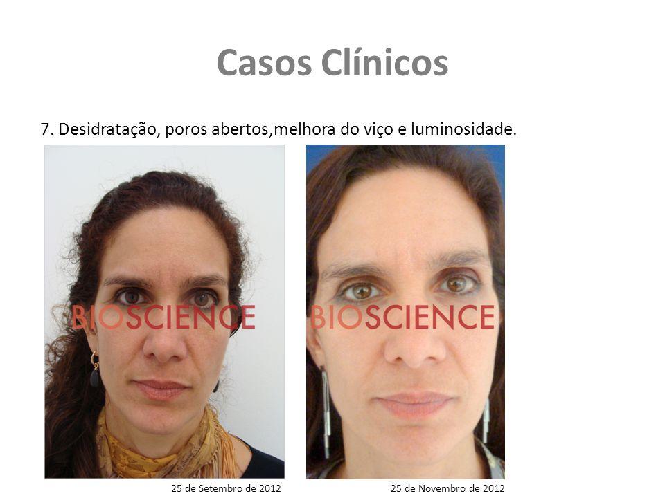 Casos Clínicos 7. Desidratação, poros abertos,melhora do viço e luminosidade. 25 de Setembro de 2012.